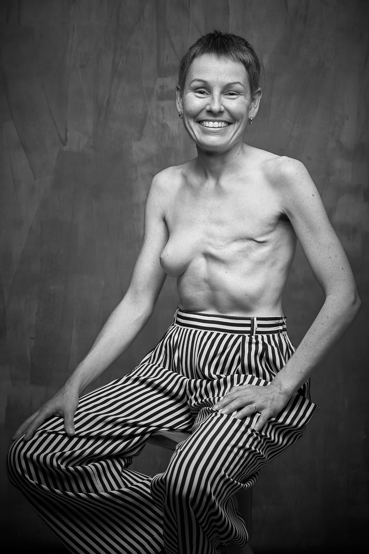 Una historia detrás de cada cicatriz Fotos Pablo Gil