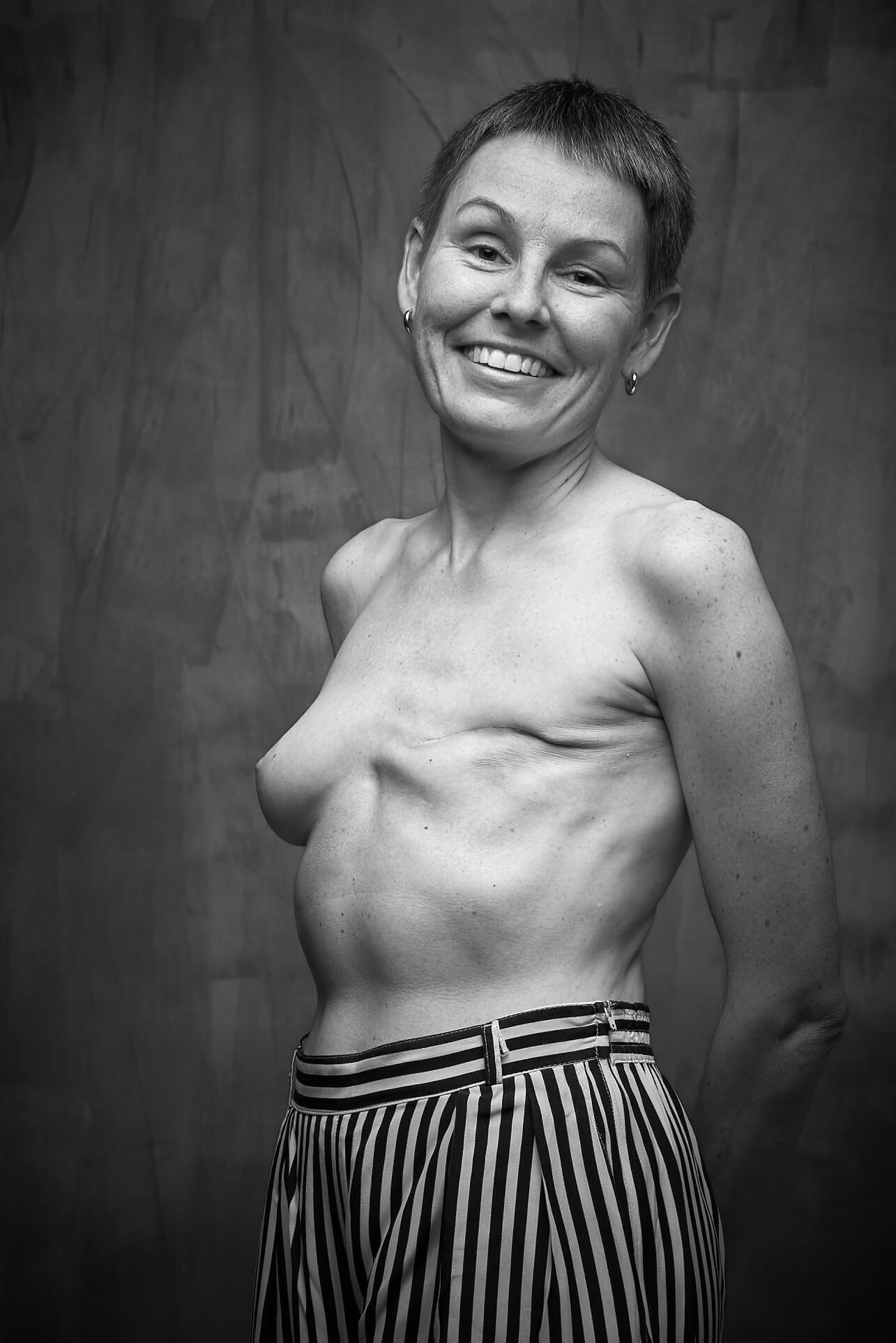 Una historia detrás de cada cicatriz Foto Pablo Gil