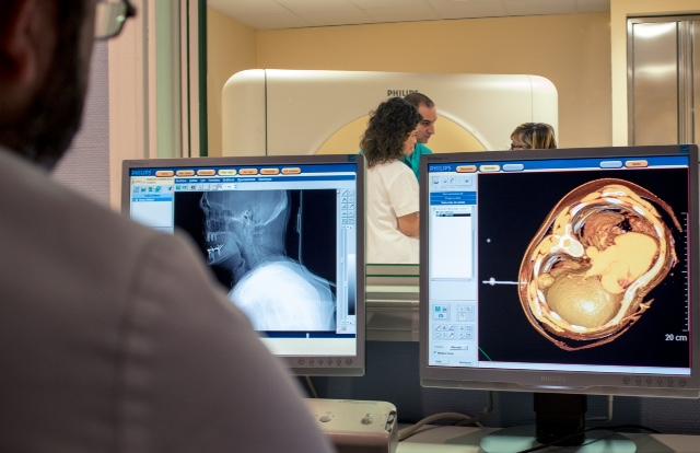 Biopsia con aguja Gruesa en Pulmón_Hos