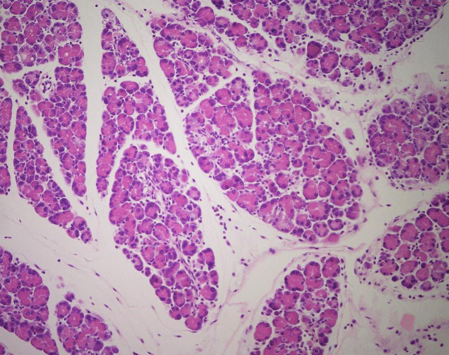 Imagen histológica de tejido pancreático inflamado (pancreatitis). La inflamación crónica aumenta el riesgo de desarrollar cáncer de páncreas./ CNIO