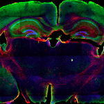 Expresión de CAS9 (verde) y GFAP (rojo) en una sección coronal del cerebro de un ratón TVA/Cas9./ Foto CNIO